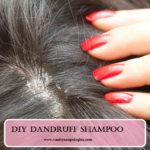 DIY Dandruff Shampoo (How To)