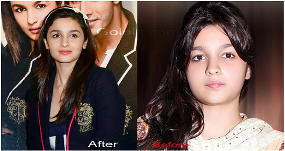 Alia Bhatts Weight Loss Before And Aftervanitynoapologiesindian
