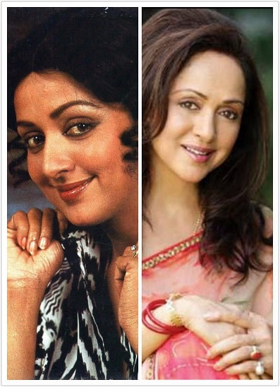 best-bollywood-actresses-who-have-gone-fairness-skin-lightening-treatment