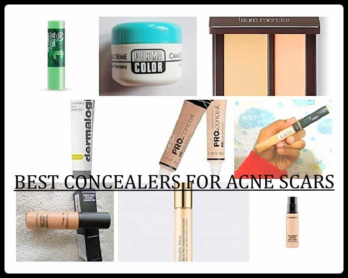 10 Best Concealers For Acne Scars And Blemishes Reviews