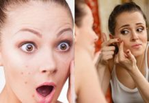 top-10-remedies-to-remove-pimples